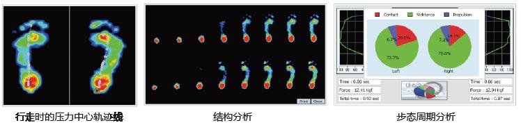 足底压力分析仪及步态分析仪结构分析